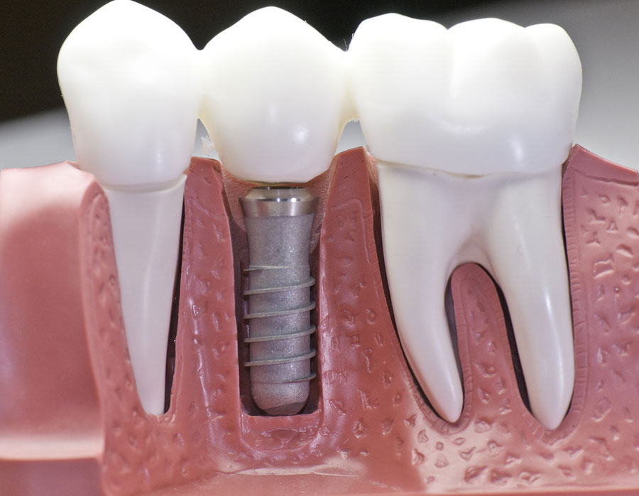 The Importance of Replacing Missing Teeth to Your Oral Health