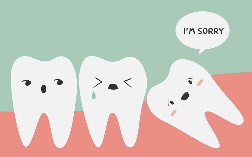 What are Wisdom Teeth, and Should They be Removed?