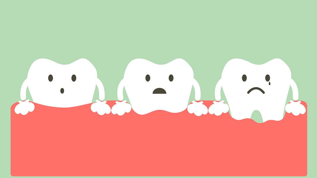 What are the Signs and Symptoms of Periodontal Disease?