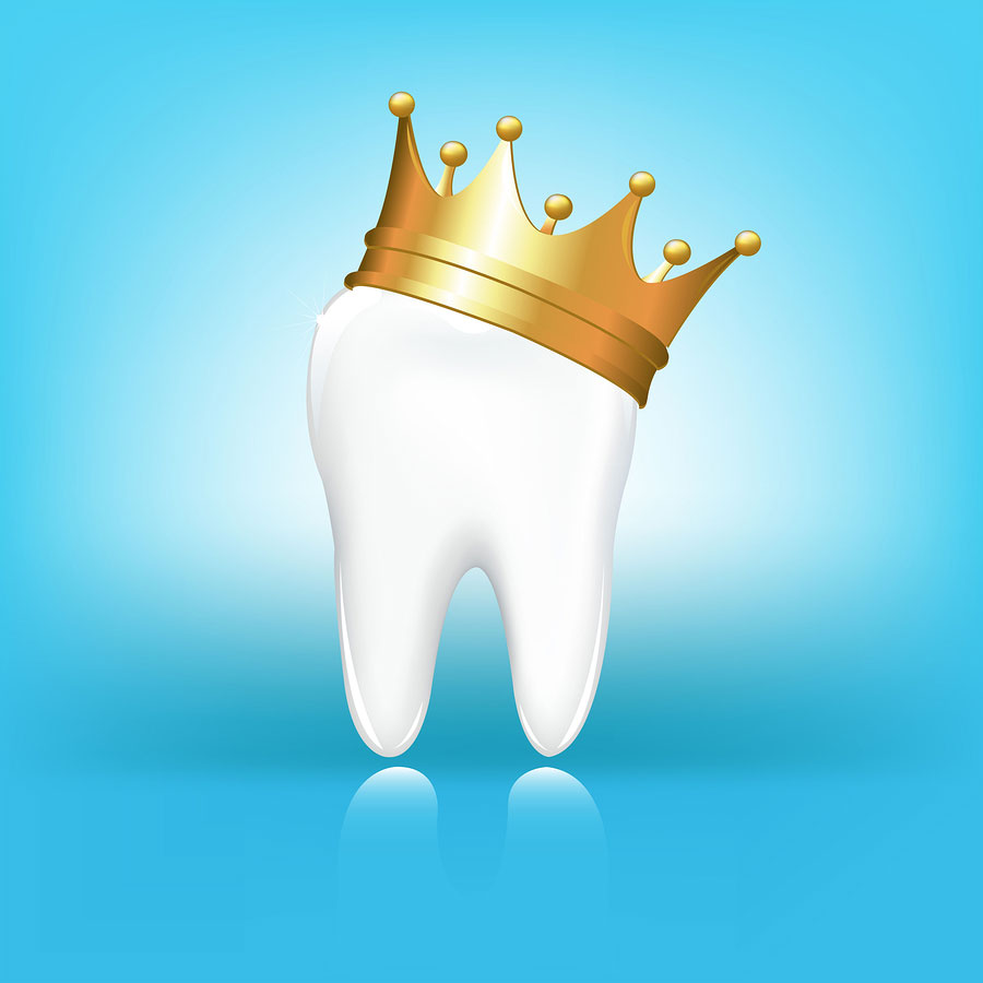 What's the Difference Between Traditional and Same Day Dental Crowns?