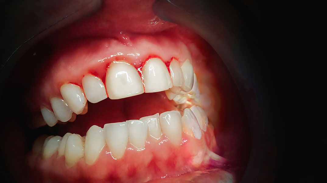 It Is Imperative to Treat Gum Disease, but Why?